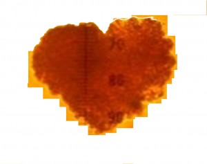 Islet cell heart edited